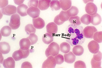 blood4.jpg (40969 bytes)